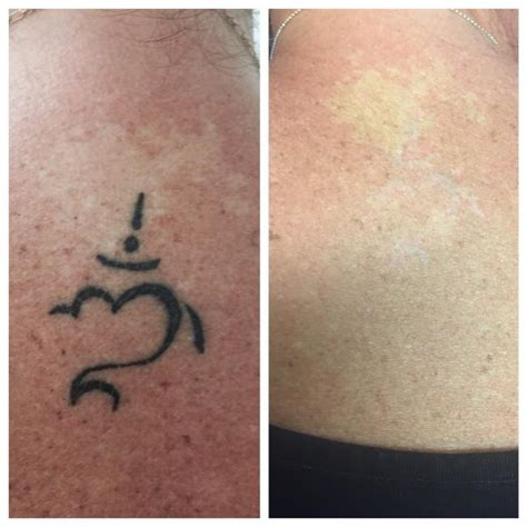 outside in tattoo removal removal before and after how to get rid of