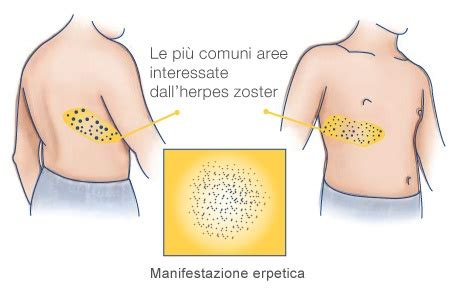 herpes zoster interno 24 best images about salute informazione on