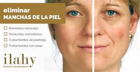 tratamientos tratamientos para las manchas tratamientos para eliminar las manchas en la piel