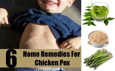 how to use home remedies for chicken pox diy martini