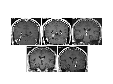 mal di testa centrale quando il mal di testa 232 causato da un parassita pazienti it