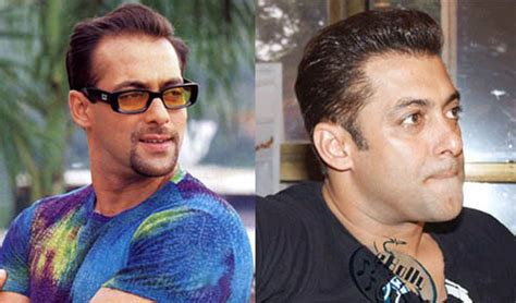 salman khan hair transplant cost the salman khan hair transplant story his hair clinic