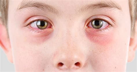 symptoms of pink eye pink eye conjunctivitis treatment allaboutvision