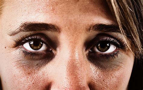 black under eye how to get rid of dark circles under your eyes