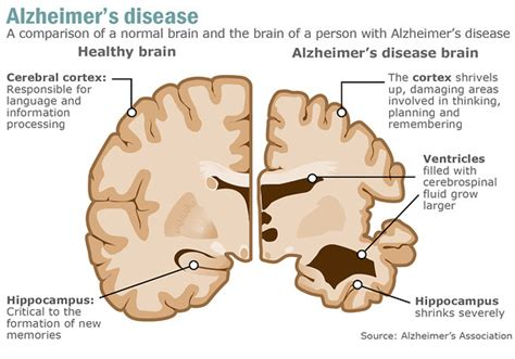 test memoria alzheimer investors impatient for alzheimer s cure marketwatch
