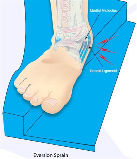 Interior Ankle Sprain by Inversion Vs Eversion Sprains Ankle