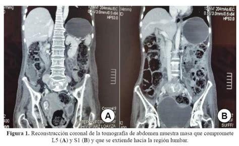 cadenas ligeras de mieloma compresi 243 n del plexo lumbosacro por plasmocitoma mieloma