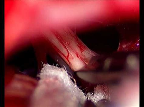 vestibular nerve section cochlear nerve mashpedia free video encyclopedia