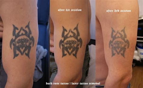 dark tattoo removal and pmu removal with laser