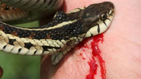 rattlesnake bite snake bites w chewy snakebytestv
