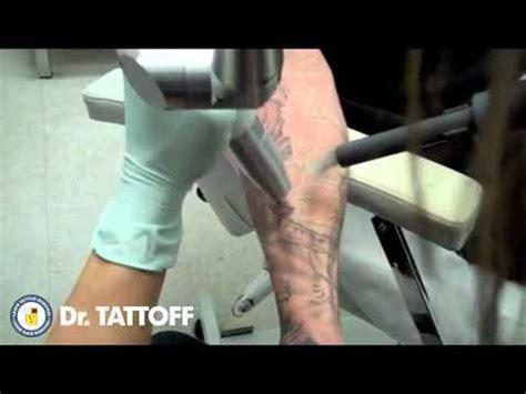 tattoo removal cost houston t 233 cnica para borrar tatuajes mp4 youtube