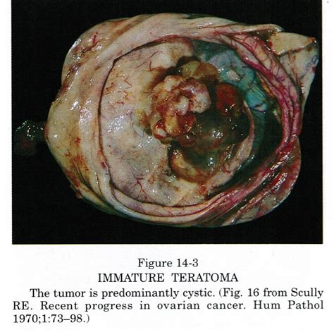 Immature Teratoma Pathology Outlines by Pathology Outlines Teratoma Immature