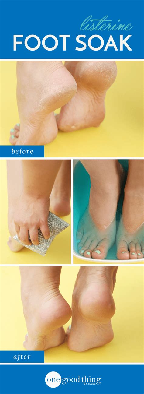 Foot Bath Detox Listerine by Your New Miracle Cure For Cracked Heels Is