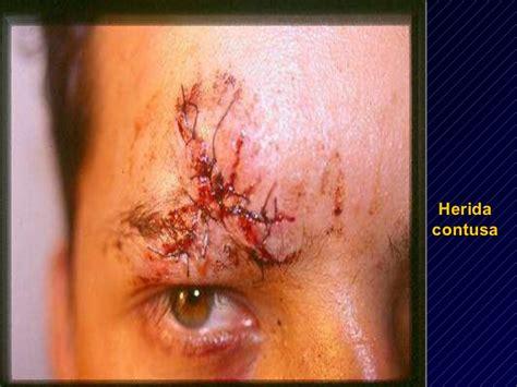imagenes de heridas asquerosas lesiones usmp