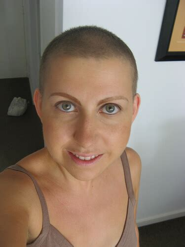 hairstyles after chemo hair loss biotin chemo hair loss trendy hairstyles in the usa
