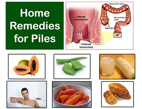 home remedies for piles treatment
