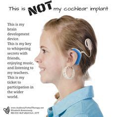 getting a perm with a baba hearing implant can i 1000 images about avt on pinterest cochlear implants