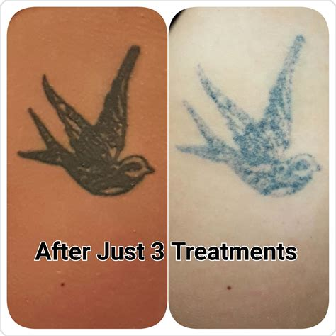 tattoo removal before and after uk gallery c h laser treatments removal gloucester