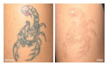 tattoo removal with salt before and after laser removal salt lake city steven jepson m d