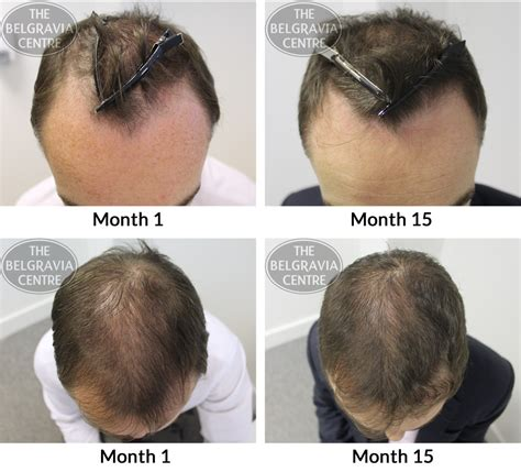 male pattern hair loss cure 2015 male pattern hair loss photoscans the belgravia centre to