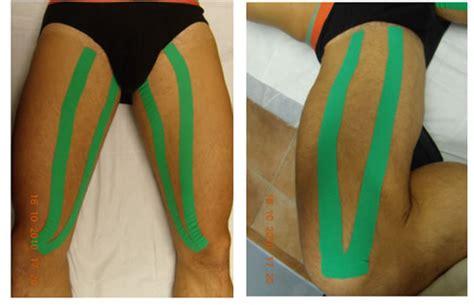 dolore interno coscia inguine pubalgia e dolore alla muscolatura adduttoria della coscia