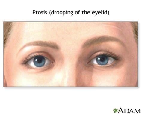 Mcgowans Droopy Eye Problem by Myasthenia Gravis Uf Health Of Florida Health