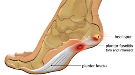 Planter Fascitis Treatment by Suffering From Plantar Fasciitis Heel Spurs