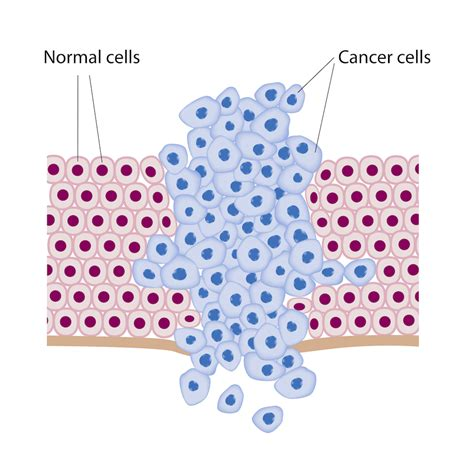 And Cancer by Cancer Disorders L Shide M D L
