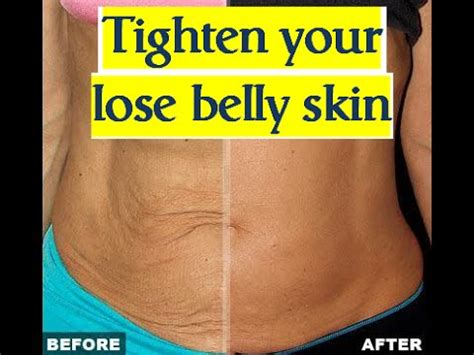tighten tummy after c section skin tightening after losing belly fat loose skin after