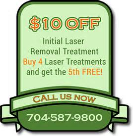 laser tattoo removal charlotte nc bill s removal carolina