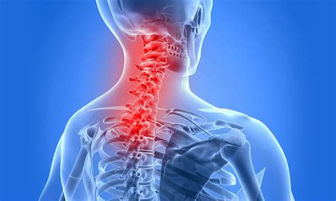 253 best images about ankylosing spondylitis much more on sinus infection home ankylosing spondylitis research arthritis research arthritis national research foundation