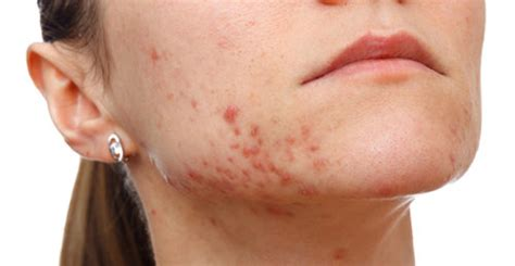 how to fade acne scars dark brown hairs how to fade acne scars fast naturally diminish acne