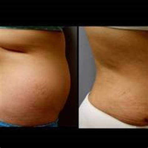 how long does c section swelling last how long does the swelling last from a tummy tuck that was