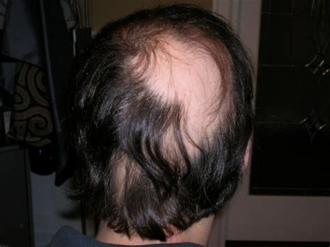 can people with severe alopecia get braids treating alopecia areata hair loss knoxville