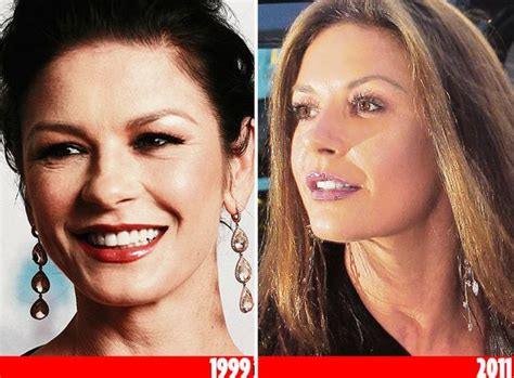 celebrities who have had a neck lift which celebrities have had cosmetic surgery mirror online