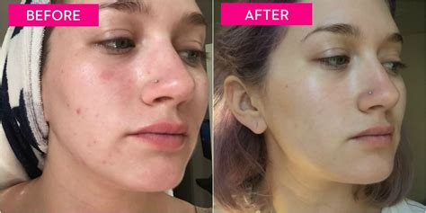 healthy fats and acne this is what happens if you don t squeeze spots for a week