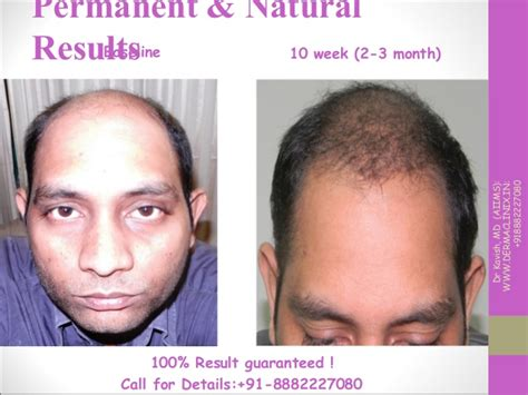 hair transplant month by month pictures hair transplant magical result at dermaclinix