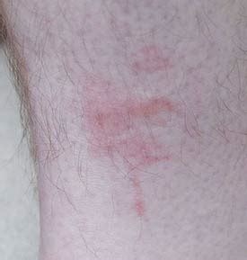 bed bug bites on black people the welts photos the welts images ravepad the place to rave about anything and