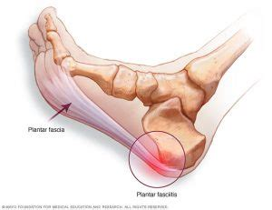 What Is Planter Fascitis by Plantar Fasciitis Heel Rodd Acupuncture
