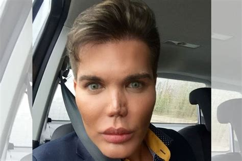 human ken doll before and the human ken doll is quitting surgery after a flesh
