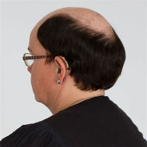 single bond extensions to cover bald spots top extension customized hairpiece excessive hair loss