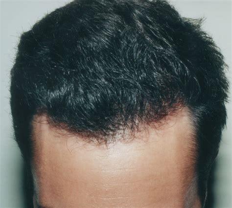 hair transplant center nyc hair transplantations nyc hair transplant nyc dr thomas law hair restoration