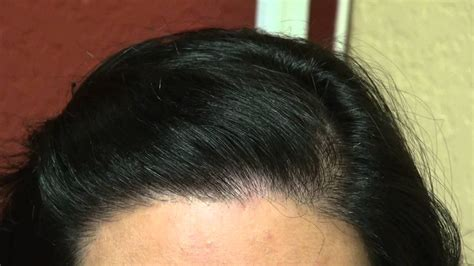 bang area of hair thinning thinning hair in area hair transplant archives crown