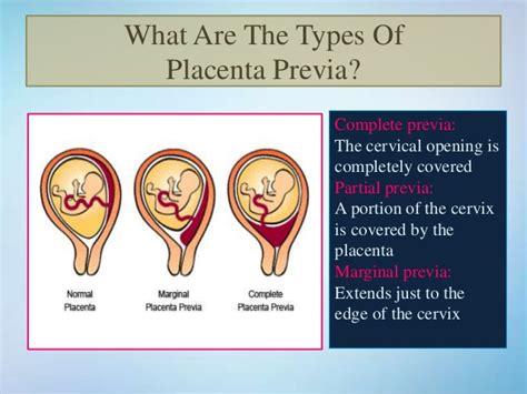 cesarean section signs and symptoms placenta previa symptoms causes treatment