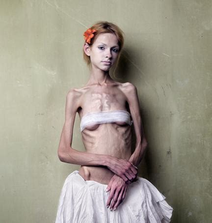 anorexic models that died pro colleen