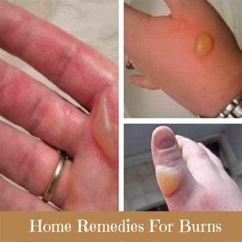 remedies for burns home remedies for burns and home