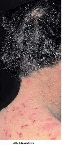 Stiche Im Nacken by Milben L 228 Use Fl 246 He Symptome Den Parasiten Zuordnen