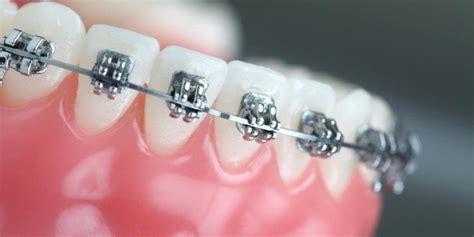 Biaya Pemutihan Gigi Mati kawat gigi sebagai fashion mau mati oleh anjani siswo