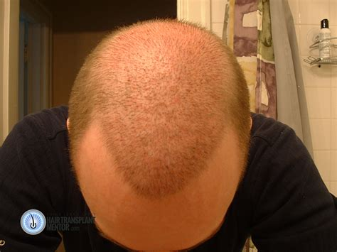 hair transplant cost in tianjin china hair transplant photos day by day hair transplant