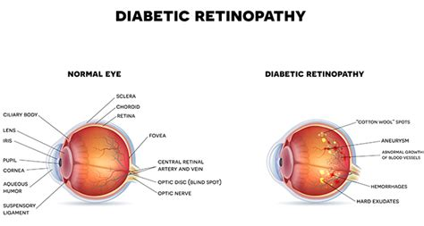 Symptoms Of Going Blind From Diabetes 16 year invents 3d printed eye test for preventing